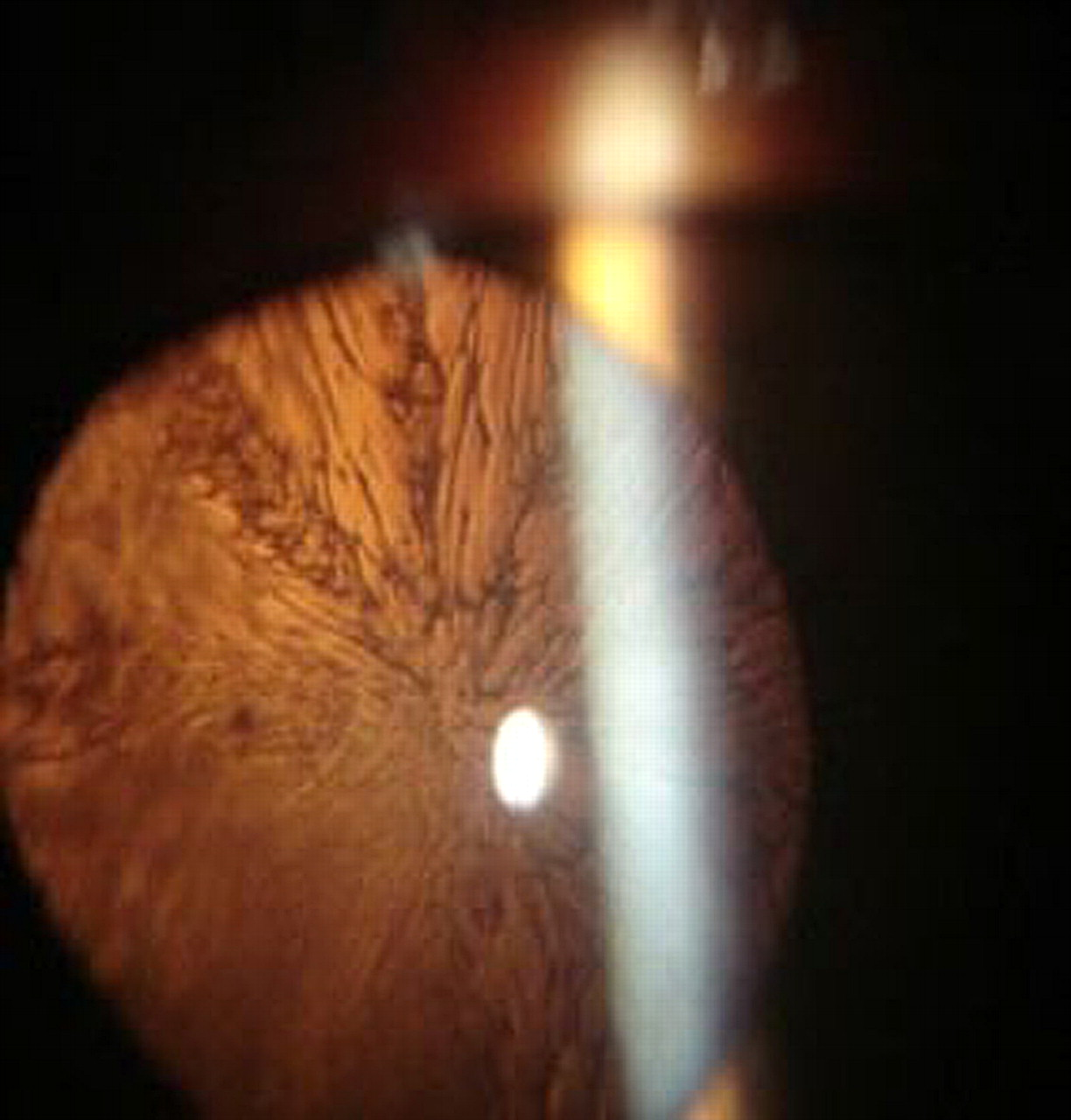 Morphology Of Traumatic Cataract Does It Play A Role In Final