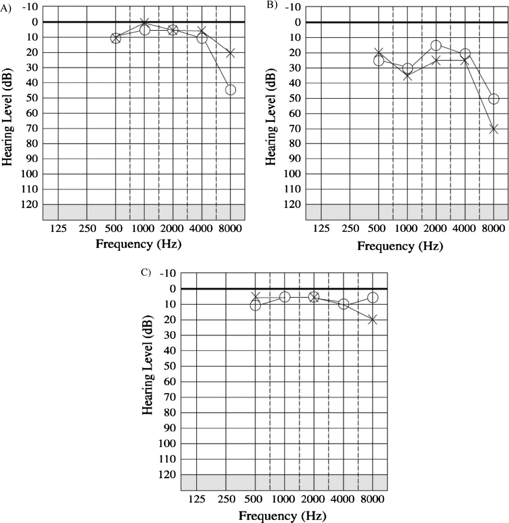 Prevalence And Audiological Features In Carriers Of Gjb2 Mutations Timing A 351 Ford Engine Download Figure