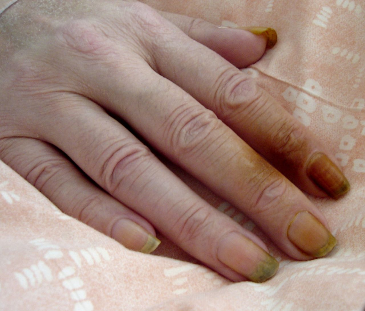 Tobacco-stained fingers: a clue for smoking-related disease or ...