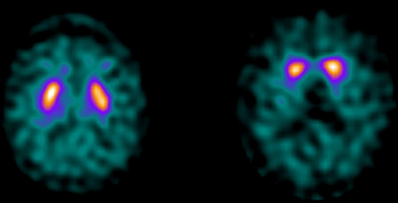 (123I)FP-CIT SPECT in suspected dementia with Lewy bodies ...