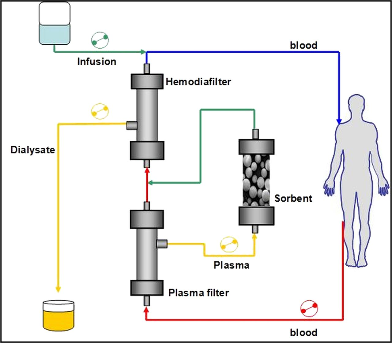 Efficacy of coupled plasma filtration adsorption  CPFA  in