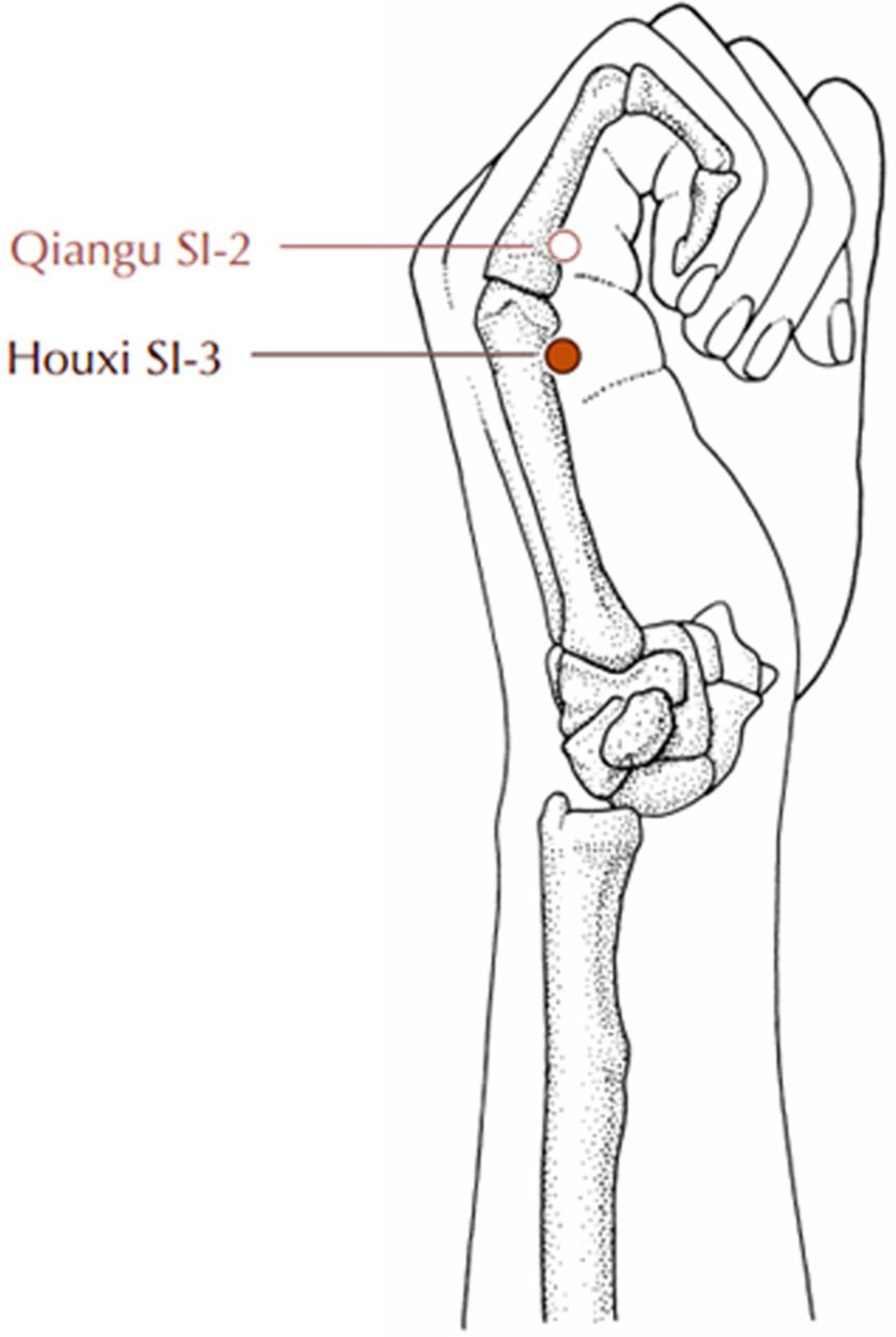 Acupuncture at Houxi (SI 3) acupoint for acute neck pain