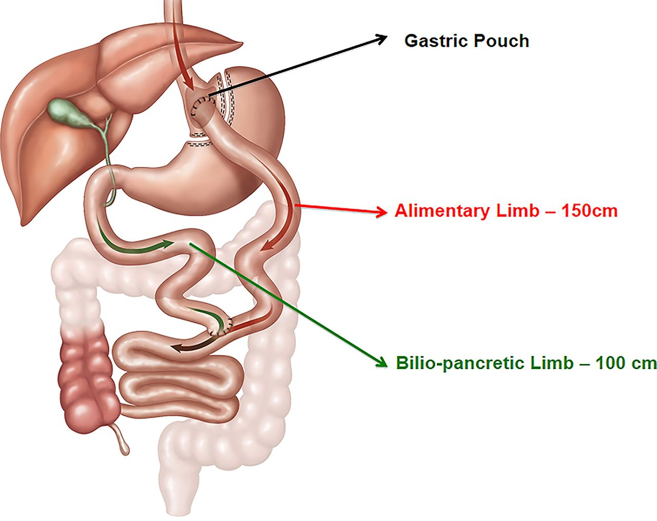 Effects Of Gastric Bypass Surgery In Patients With Hypertension