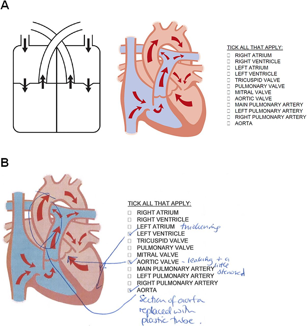 3D-manufactured patient-specific models of congenital heart defects ...