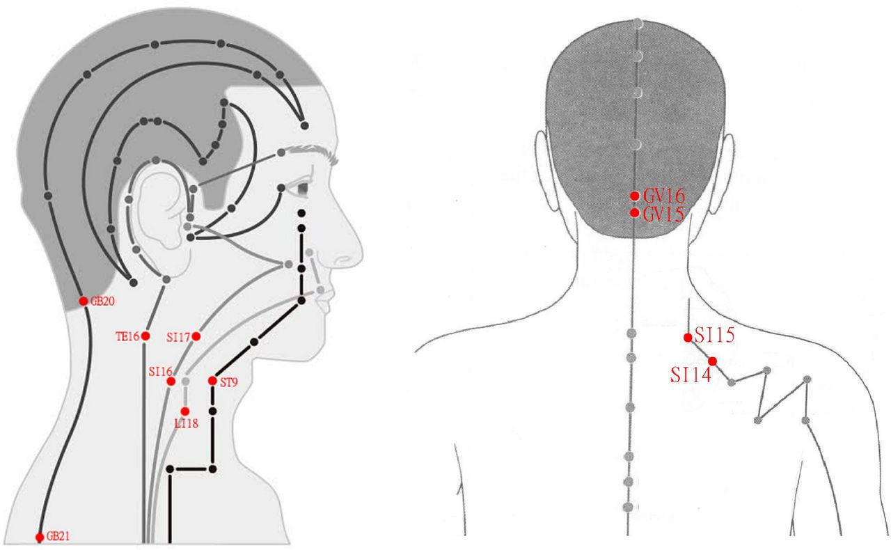 Retrospective study using MRI to measure depths of ...