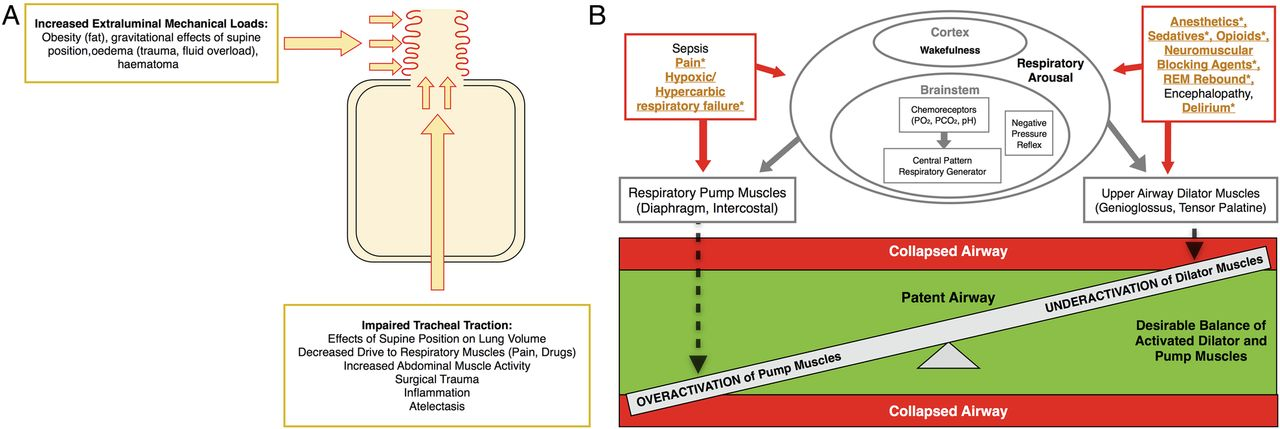 Effects of obstructive sleep apnoea risk on postoperative ...