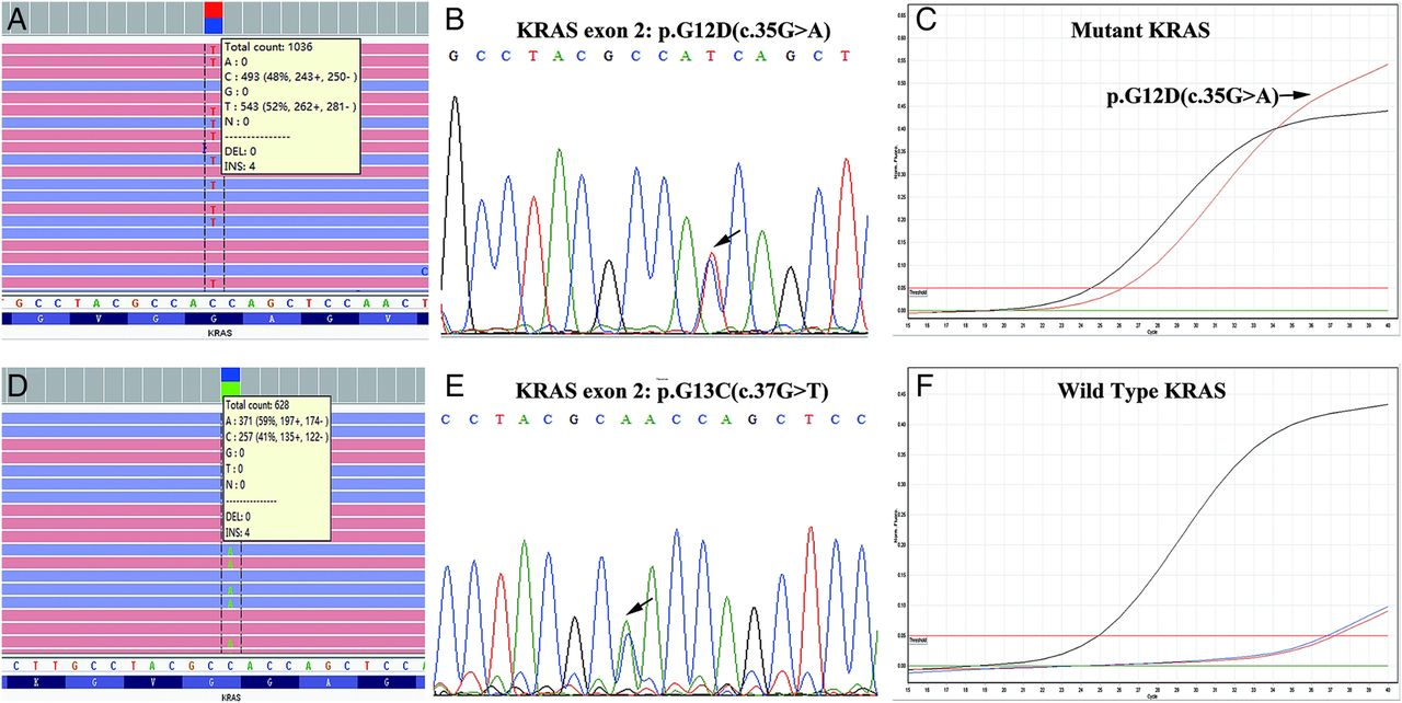 Validation Of Targeted Next Generation Sequencing For Ras