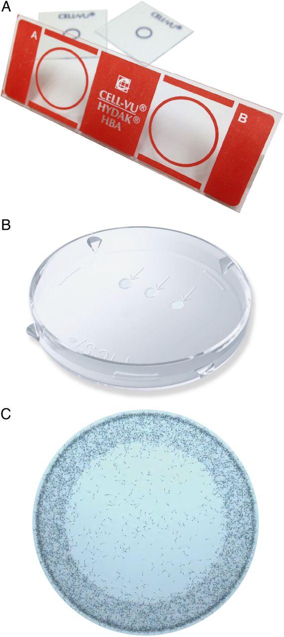 hydak sperm hyaluronan binding assay