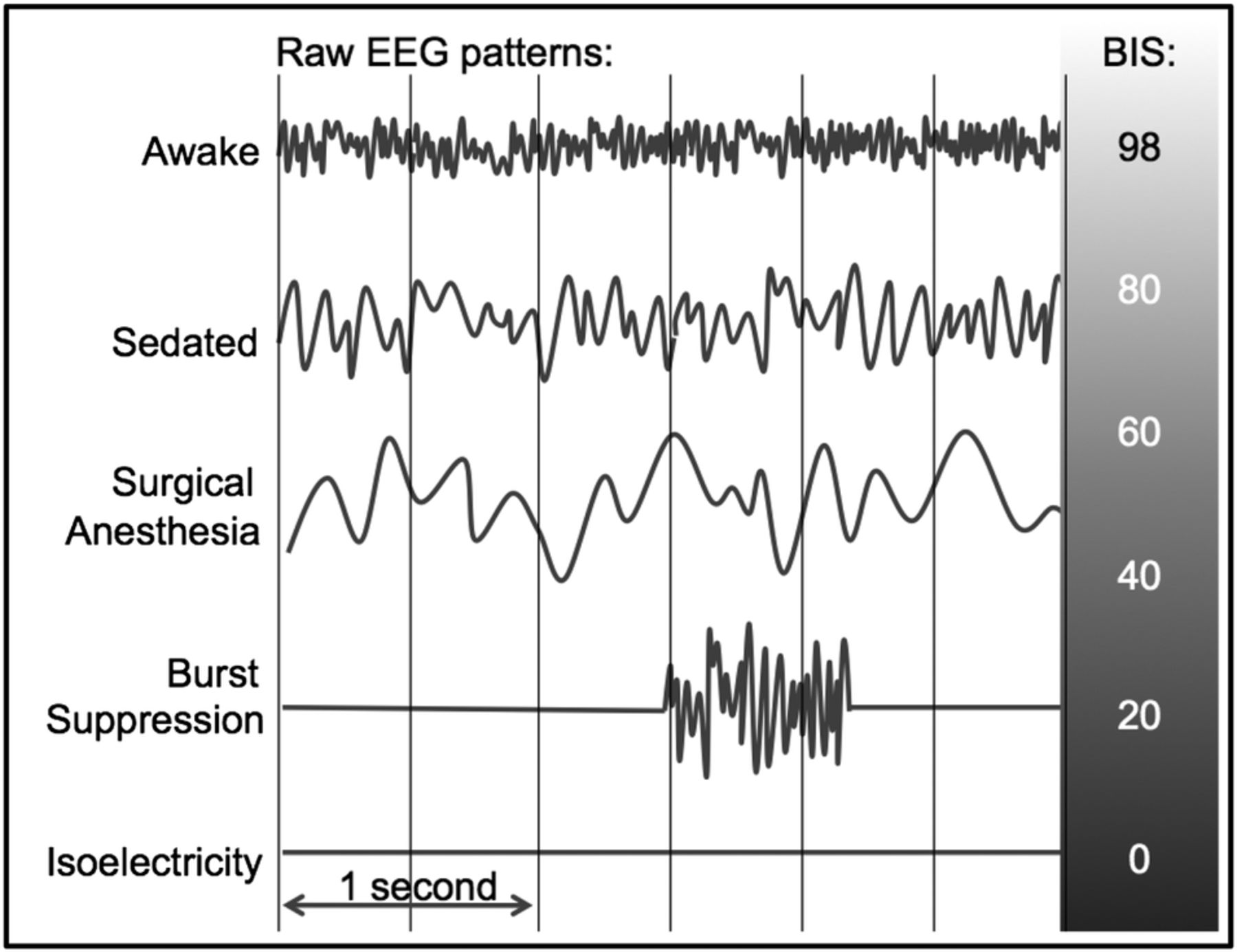 Protocol for the Electroencephalography Guidance of
