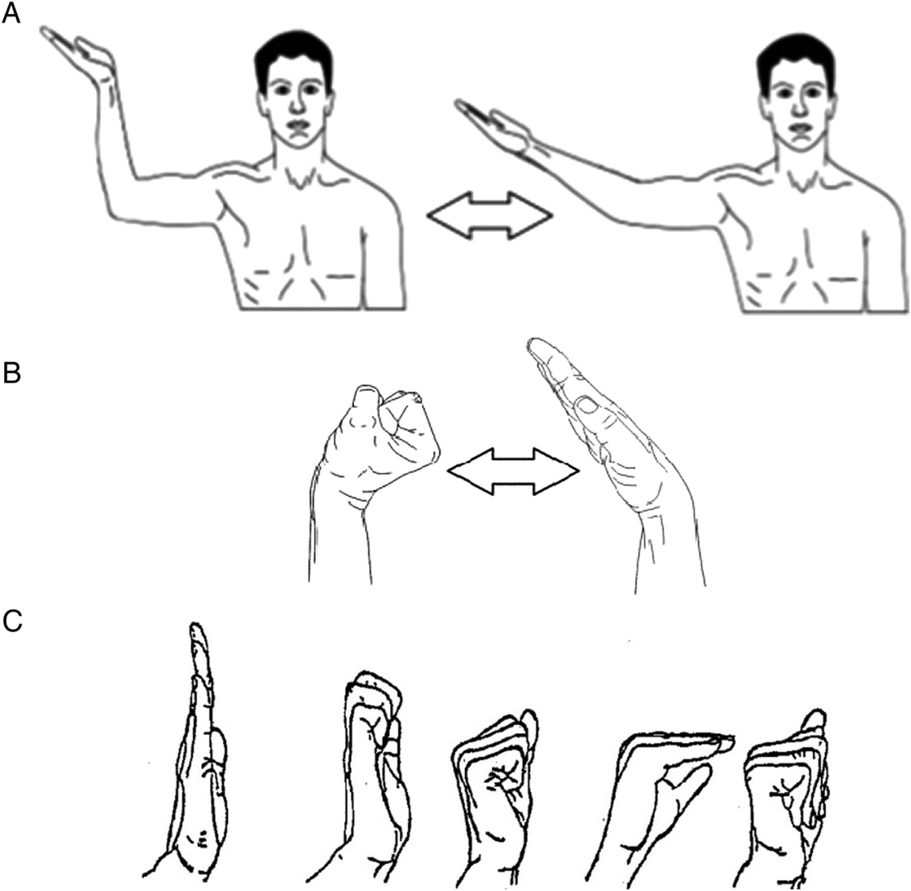 Education, night splinting and exercise versus usual care