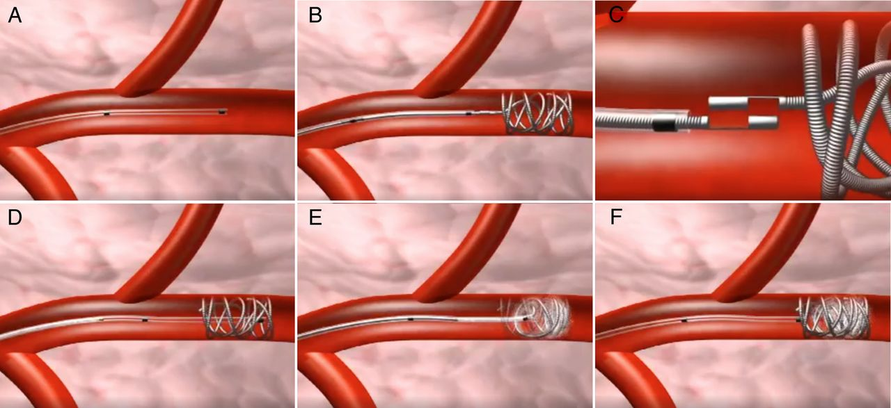 Efficacy and safety of super selective bronchial artery coil embolisation for haemoptysis  a
