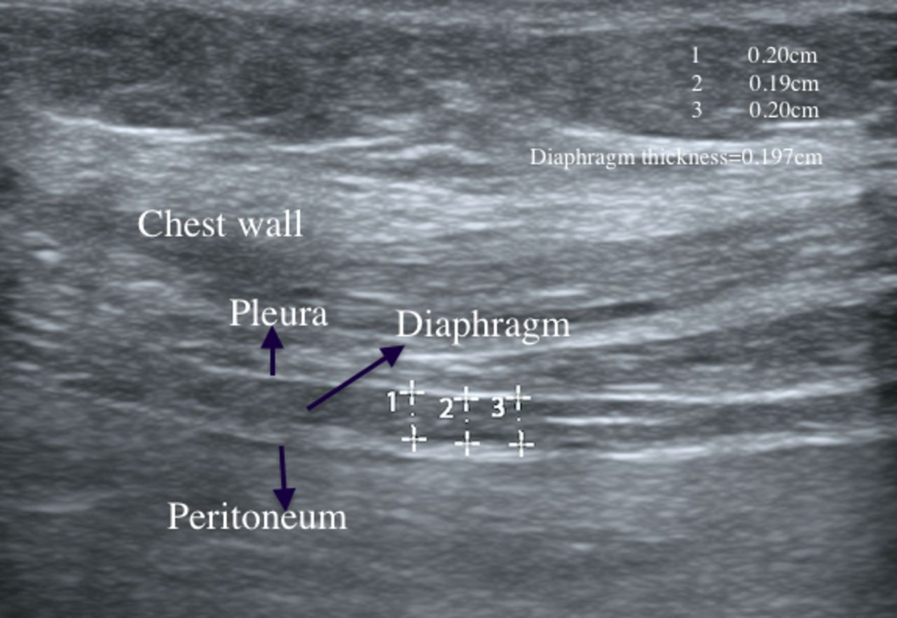 The Predictive Value Of Serial Changes In Diaphragm Function During