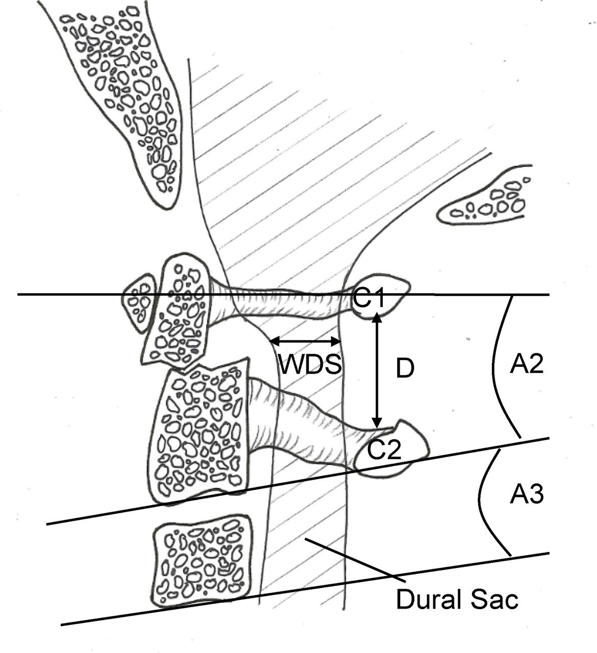 Cadaveric study of movement in the unstable upper cervical spine