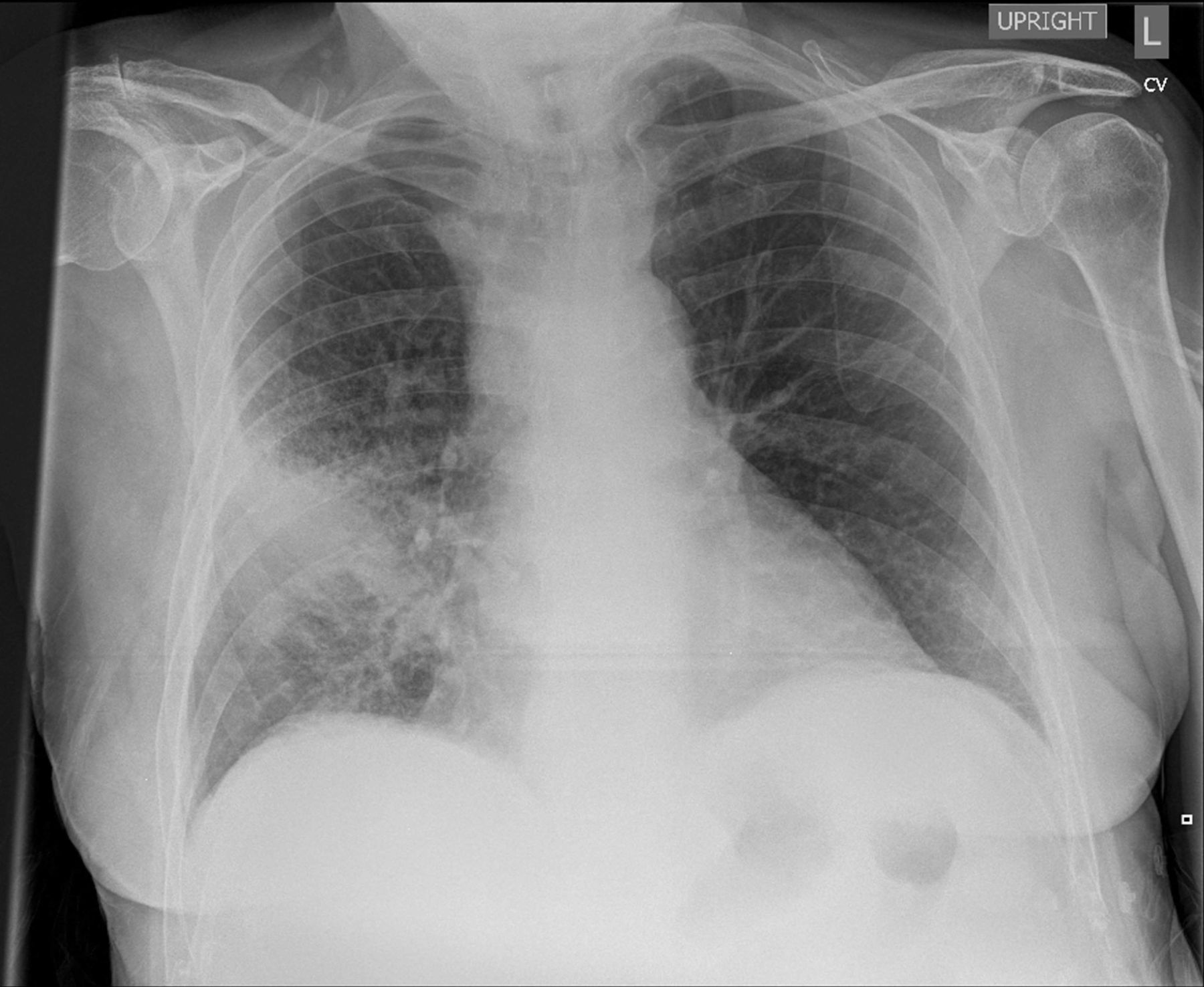similarity of chest x ray and thermal imaging of focal pneumonia a