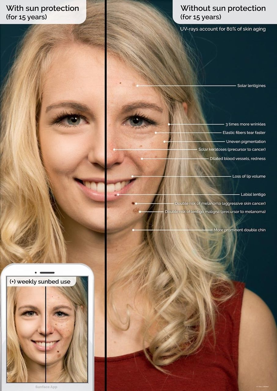 a skin cancer prevention photoageing intervention for