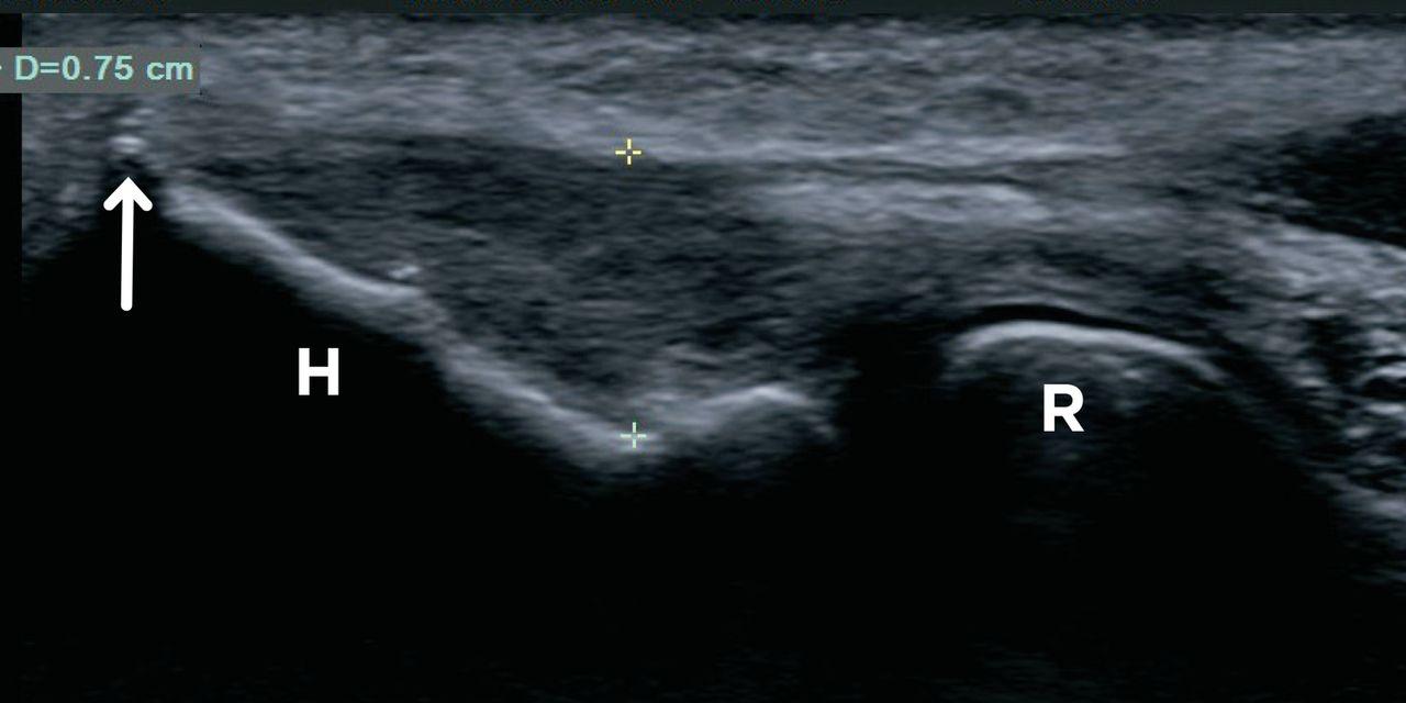 Ultrasound Guided Tendon Fenestration Versus Open Release