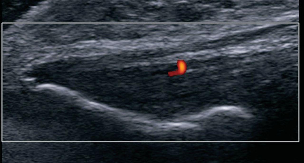 Ultrasound-guided tendon fenestration versus open-release