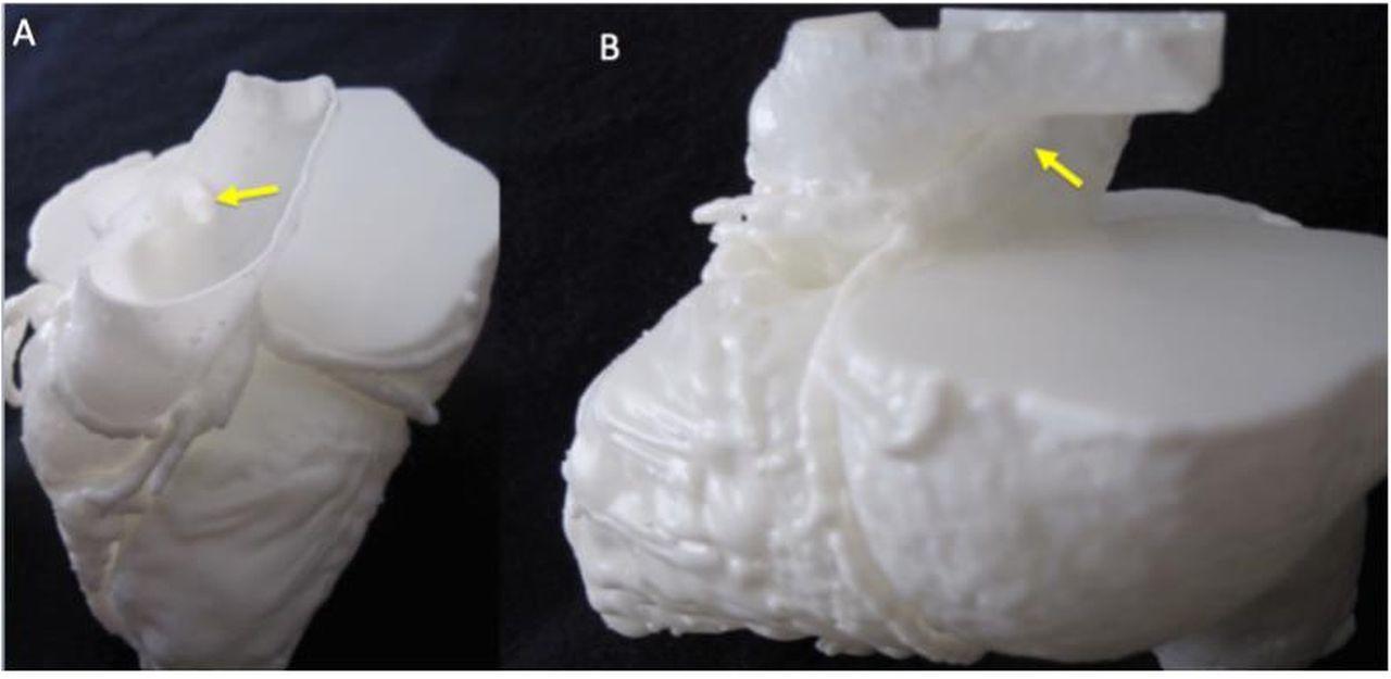 Evaluating 3d Printed Models Of Coronary Anomalies A Survey Among