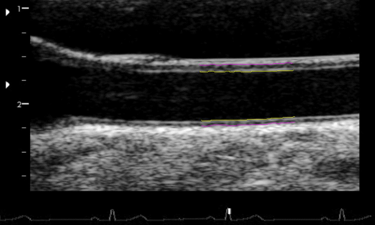 Carotid artery intima–media thickness, distensibility and